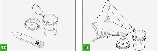 инструкция по сбору образца кала - фото 4