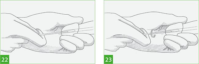 Инструкция по получению и обработке образцов биоматериала из уретры у мужчин