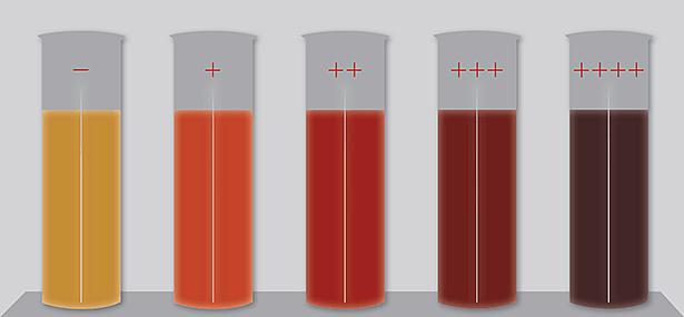 Сыворотка крови с различной степенью гемолиза