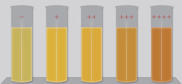 Сыворотка крови с различной степенью иктеричности
